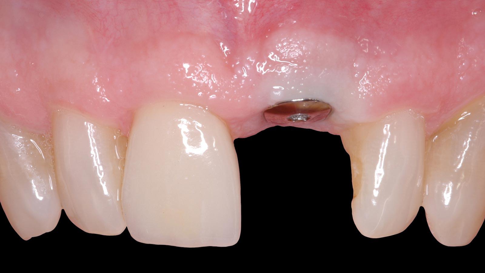 Straumann dantų implantai