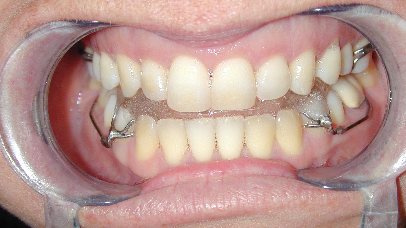 Ortopedinės odontologijos paslaugos